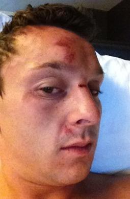 Sam Trickett beaten